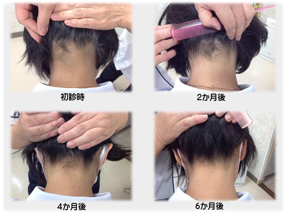 円形 脱毛 症 治療 円形脱毛症 (えんけいだつもうしょう)